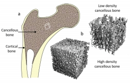Quantitative Ultrasound and the Management of Osteoporosis – Keith A. Wear
